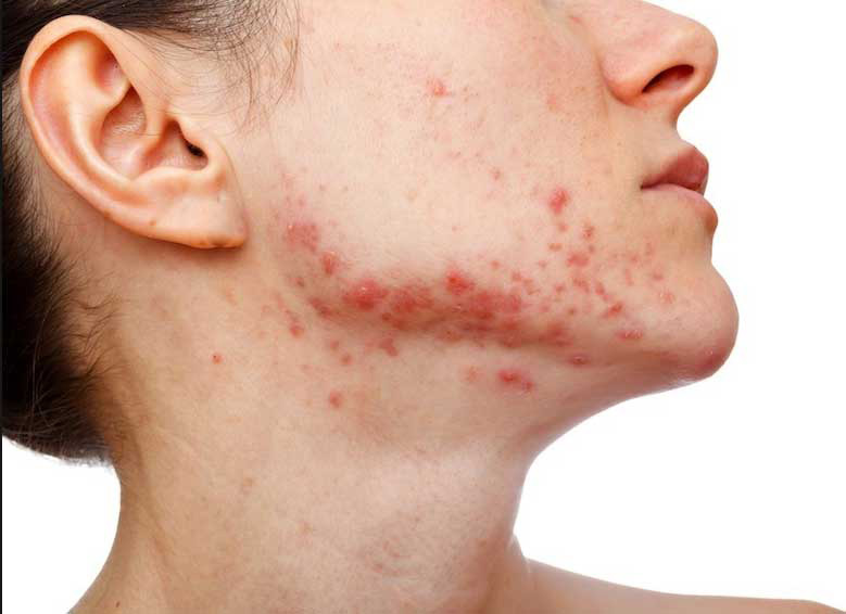 On Remedies Spots For Face Red