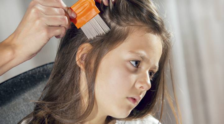 13 amazing facts about where does head lice come from! | care calm, Skeleton