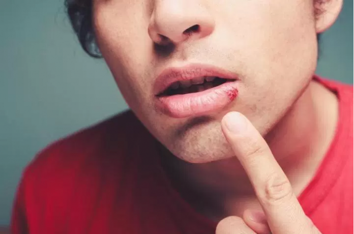 How To Get Rid Of Pimple On Lip Line Doesn T Have To Be